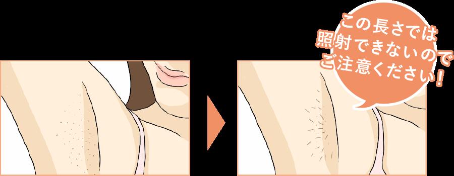 シェービング剃り残し例